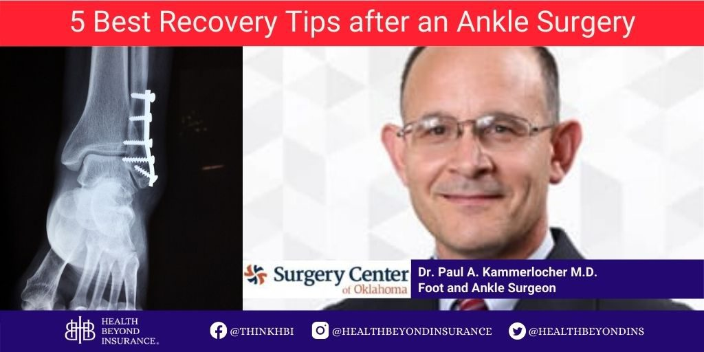 5 Best Recovery Tips after an Ankle Surgery